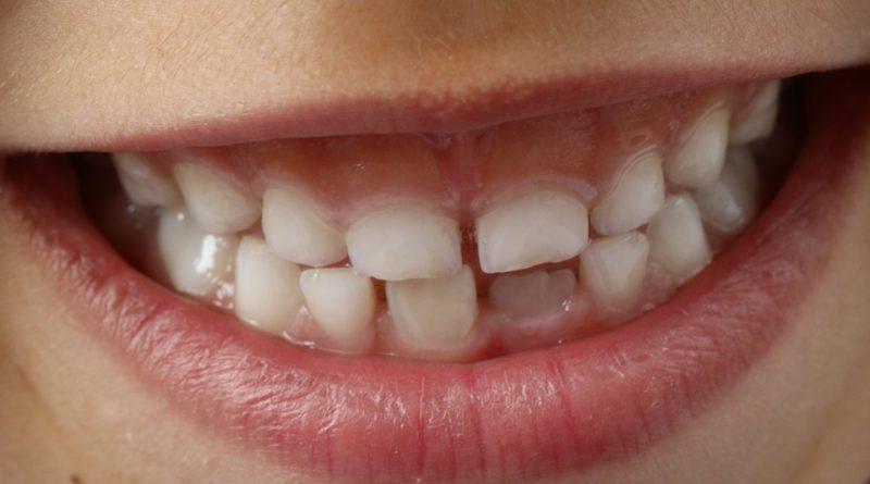 Návyky, ktoré ničia naše zuby