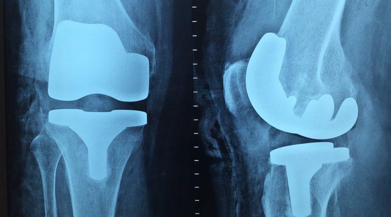 Aké problémy sa riešia na ortopedickej ambulancii?